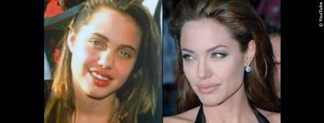 Hollywood-Stars vor und nach ihren Schönheits-OPs