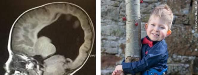 Baby wird ohne Gehirn geboren